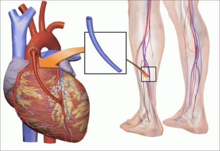 Что такое процедура шунтирования, подготовка пациента к проведению операции на сердце после инфаркта, преимущества метода и осложнения