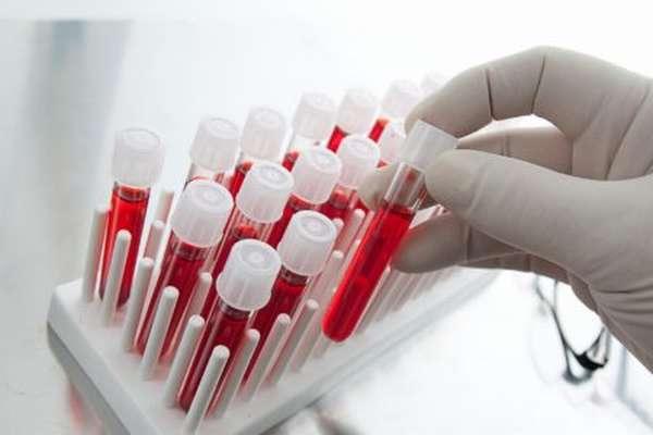 Что означают сдвиги лейкоцитарной формулы и почему она смещается влево?