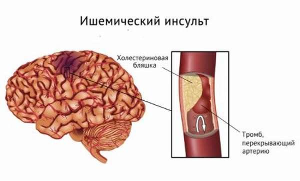В какой части тела, по каким причинам и как возникает приступ инсульта?