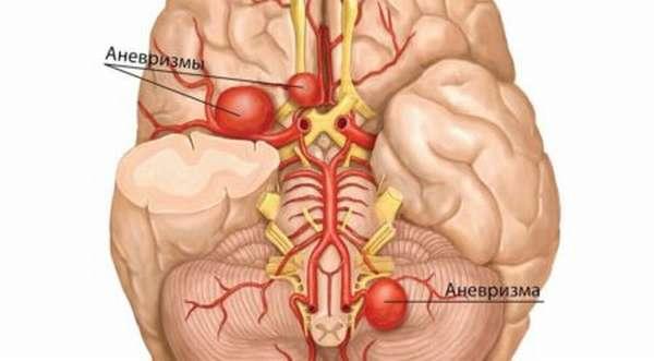 Методы эндоваскулярной хирургии аневризмы артерий головного мозга