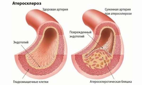 Специфика приема статинов от холестерина, возможная польза и вред от их приема