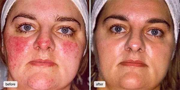 розацеа на лице симптомы и лечение, фото