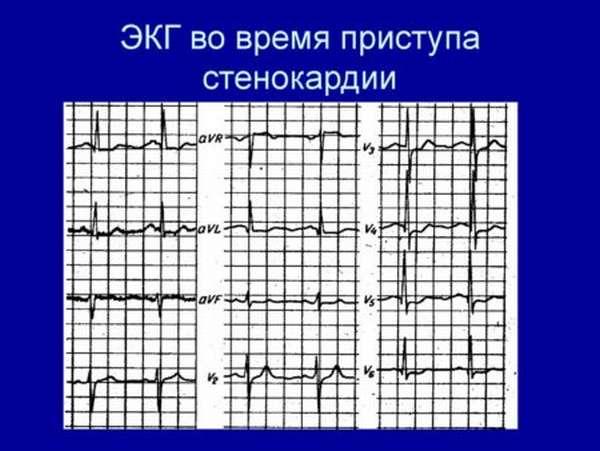 Стенокардия: ЭКГ при заболевании, особенности проведения процедуры