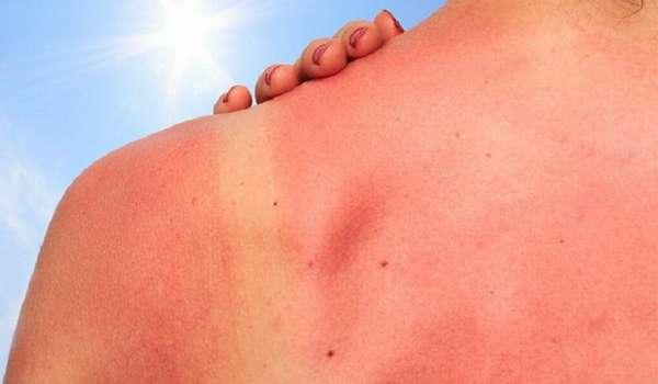 Признаки поражения кожи Солнцем