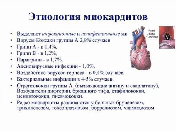Этиологические факторы, патогенез, симптомы, диагностика и лечение миокардита