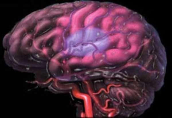 В результате инсульта человек не может глотать и не жует народные рецепты и упражнения, восстанавливающие при дисфагии