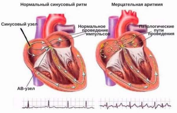 Как проводят расшифровку результатов УЗИ сердца, нормы и отклонения