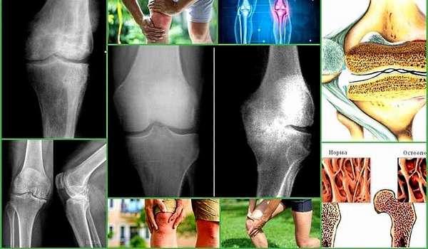 Остеопороз суставов: причины возникновения, симптомы и лечение, препараты