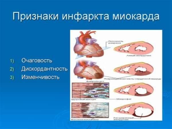 Как избежать появления одышки после инфаркта миокарда, профилактические меры