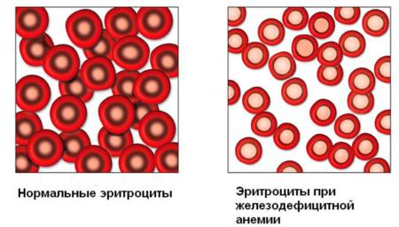 Что необходимо знать о норме гемоглобина у детей разного возраста родителям?