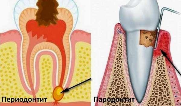 Отчего возникают болезни ротовой полости