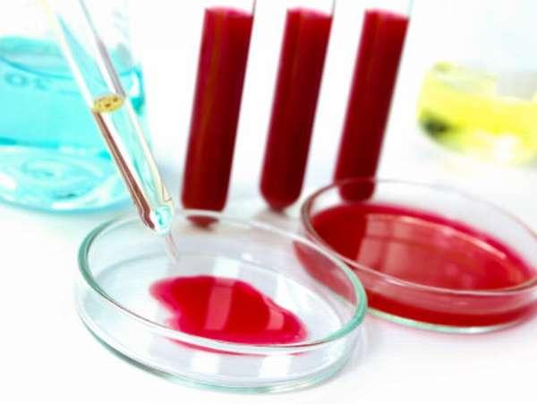 Как сдают общий анализ крови? Определение норм у женщин по возрасту в таблице