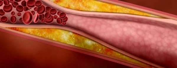 Причины хронической ишемической болезни сердца, диагностика и лечение