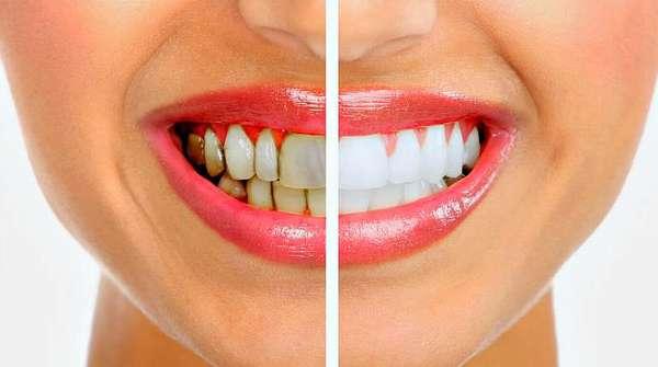 Удаление налета и камня с зубов