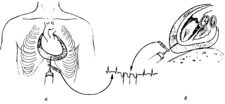 Причины возникновения гидроперикардита, симптомы и методы его лечения
