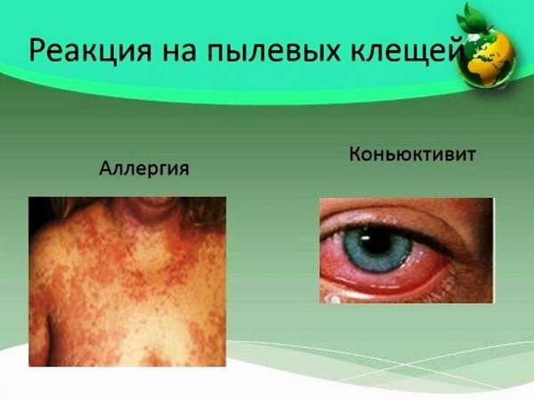 Опасность постельных клещей, чем опасны и как избавиться от пылевого клеща