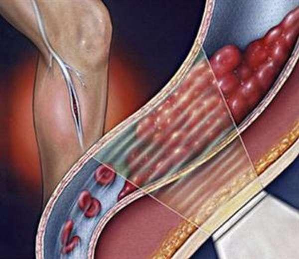 Как избавить себя от тромбов в сосудах, анатомия сосудистой системы и методы