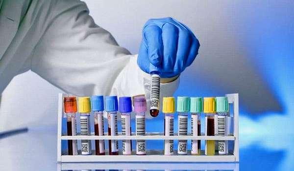 Шиповник снижает уровень холестерина