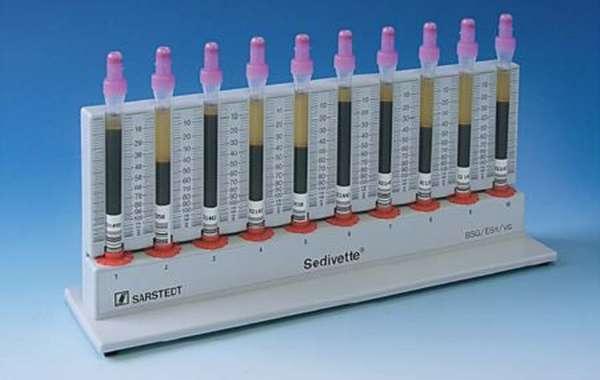 Показания и правила проведения анализа, нормы скорости оседания эритроцитов