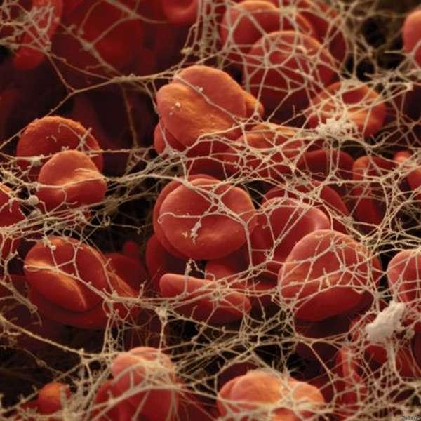 Нормы остаточного азота в составе крови и содержания его фракций в плазме