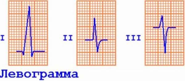 ЭКГ для определения ЭОС, расшифровка показателей, нормы и отклонения