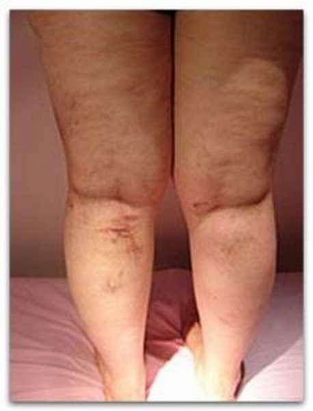 Болезнь на ногах требующая операции