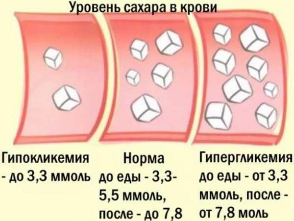 Сколько должен быть сахар в норме в крови у мужчин, с поправкой на возраст?