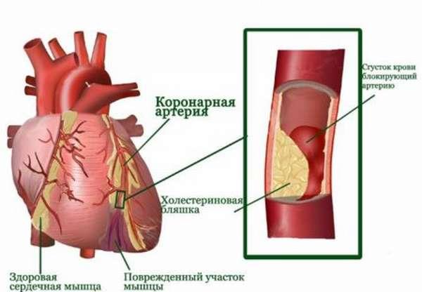 Основные причины приступа трансмурального инфаркта и его признаки