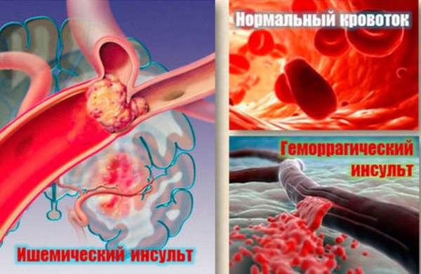 Отличия ишемического инсульта от геморрагического, первая помощь при приступе