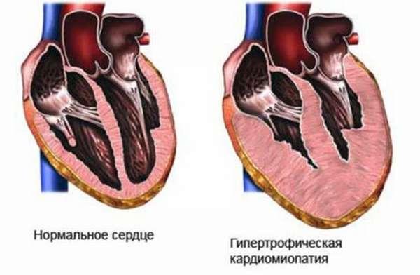 Этапы развития синдрома кардиомегалии, принципы постановки диагноза и терапии