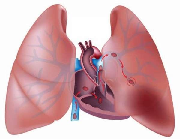 Почему может оторваться тромб, первые признаки, симптомы и последствия такого состояния