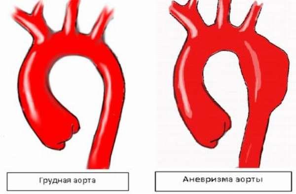 Причины разрыва аорты сердца и брюшной полости, симптомы и проявление