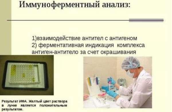 Назначение ИФА для диагностики заражения на гельминтоз, суть метода