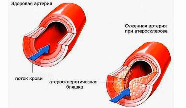 Атеросклероз. Лечение атеросклероза сосудов народными средствами