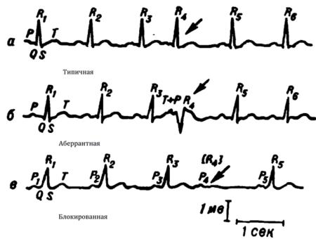 Причины возникновения предсердной и АВ экстрасистолии, механизмы протекания