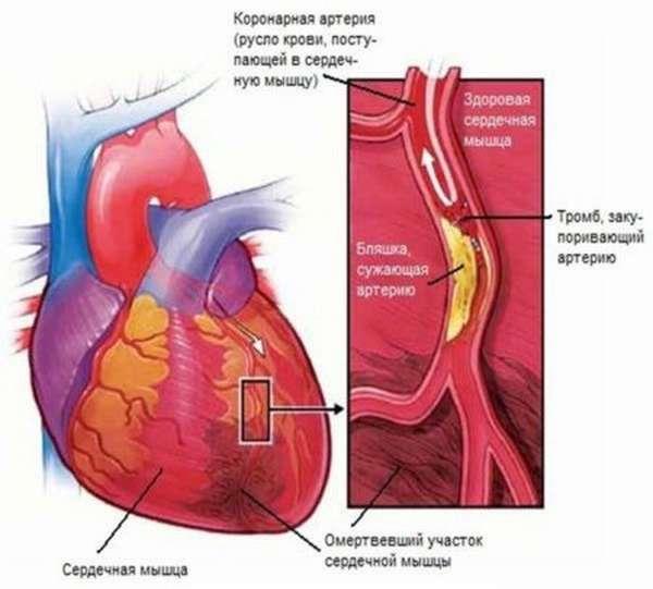 Признаки и опасность кальциноза сердца, как предотвратить угрозу жизни и здоровью?