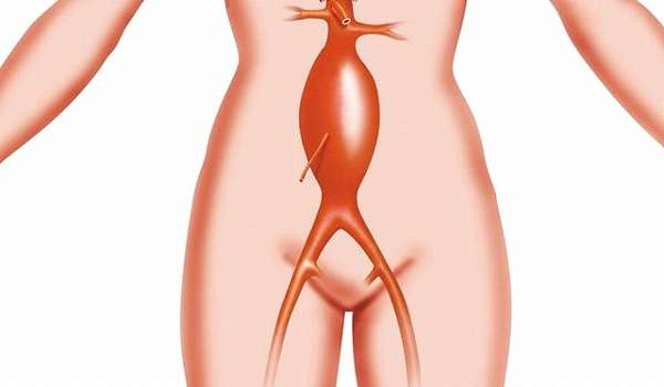 Аневризма брюшной аорты: причины, симптомы, диагностика и лечение