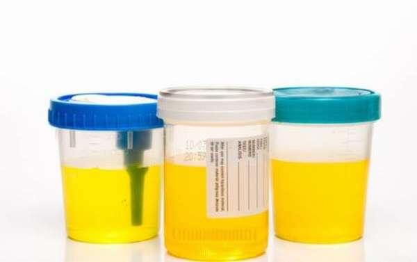 Понятие иммунохимического анализа, его значение для современной медицины