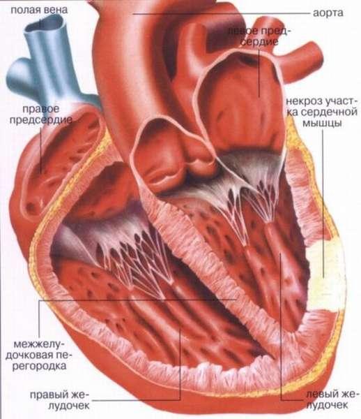 Особенности инфаркта задней стенки сердца и его отличия от других типов патологии