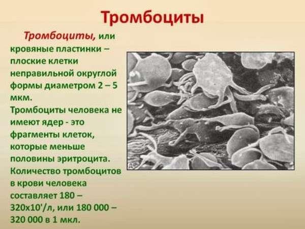 Распространенные причины низких лейкоцитов и тромбоцитов, симптомы и диагностика