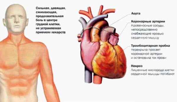 Боли в сердце и боли в левой руке: как определить причину неприятного симптома?