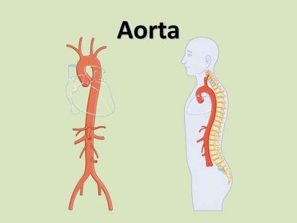Основные симптомы и подходы к лечению атеросклероза брюшной аорты