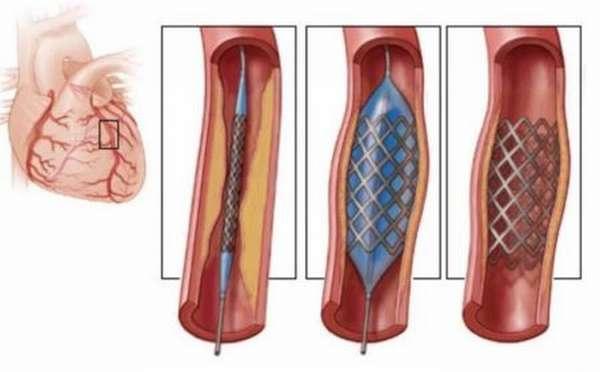 Каким образом делают операции при инфаркте миокарда: основные типы и их описание