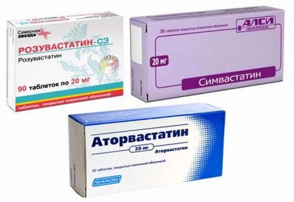Лечение нестенозирующего атеросклероза внечерепных брахиоцефальных артерий, стадии, отличия видов, в чем опасность