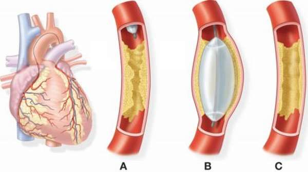Особенности коронарографии как метода диагностики, показания и противопоказания к выполнению процедуры