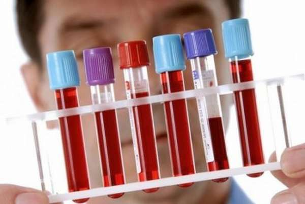 Сдача общего анализа крови: правила подготовки и проведение процедуры