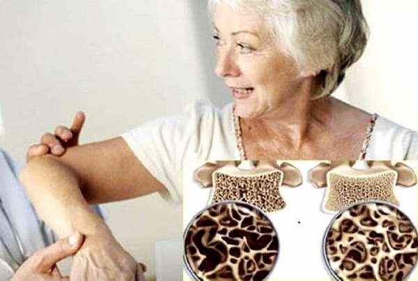 Причины возникновения и симптомы остеопороза суставов