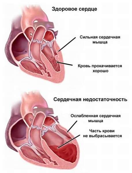 Причины появления, симптомы, диагностика и лечение сердечного кашля