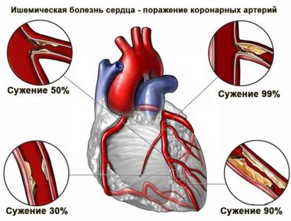 Характеристика факторов риска ишемической болезни сердца