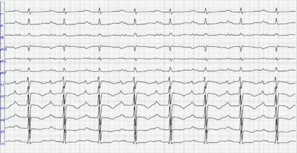 Виды и способы диагностики синоатриальной блокады сердца, симптомы, последствия и профилактика